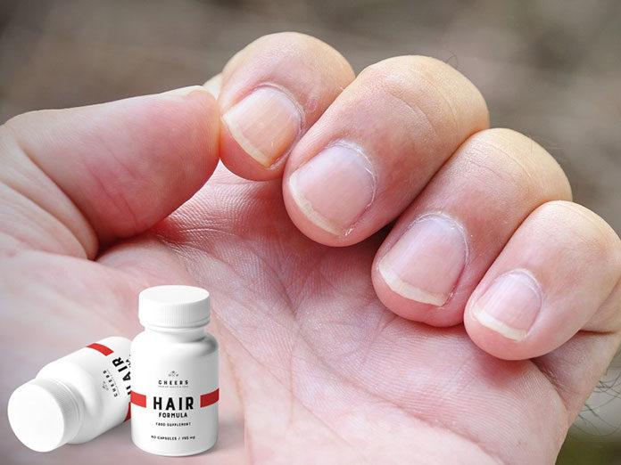 Dbasz o paznokcie, a mimo to są one osłabione? Oto przyczyny.