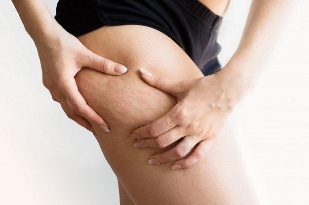 Zdrowa dieta: jak raz na zawsze pozbyć się uciążliwego cellulitu?
