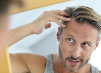 Czy łysienie androgenowe jest dziedziczne